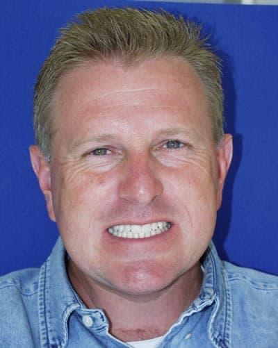 Riverview Dental Designs Bonding