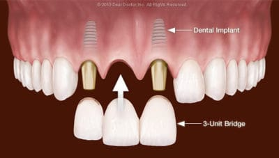 multiple tooth implant