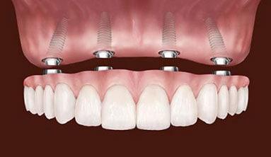 hybrid implant denture