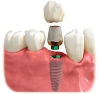 implant in bone