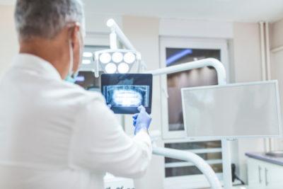dentist analyzing x-ray